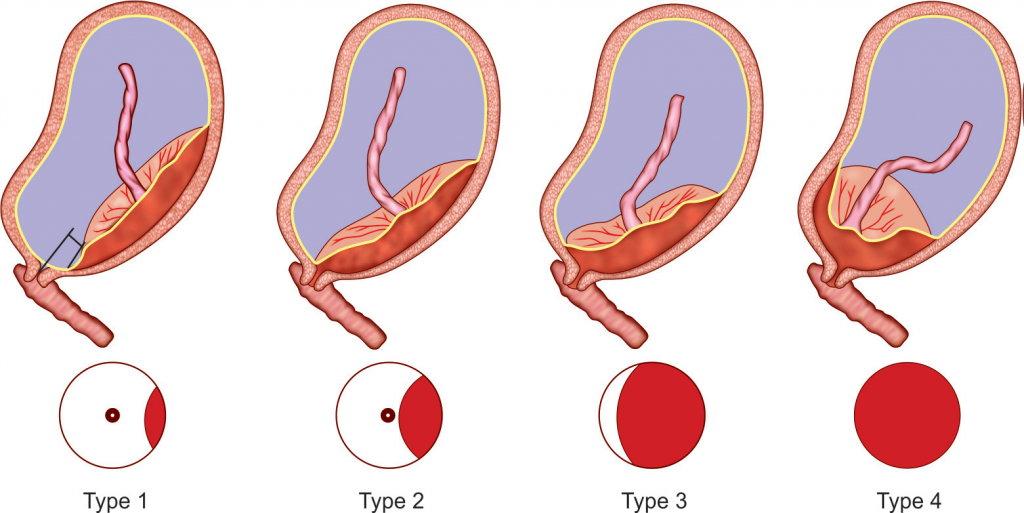 PLACENTA PREVIA : THEORIES, TYPES,CO PLICATIONS ...
